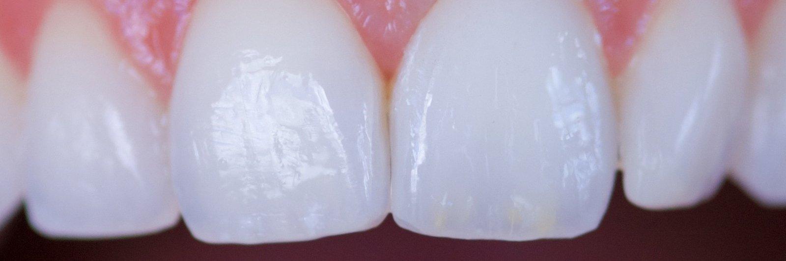 Alt om tænder, mund, og sundhed