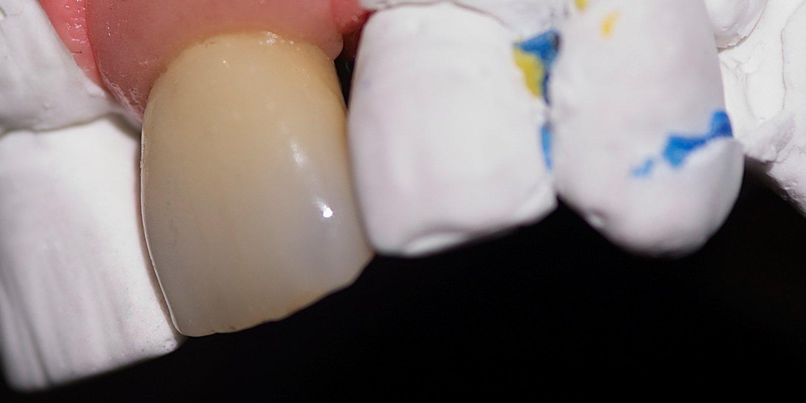 Tandkrone af bedste kvalitet - Fremstilet og håndlavet af en kompetent tandtekniker