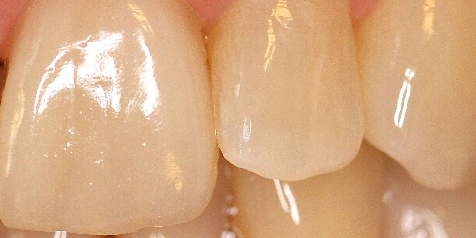 Overfladen, farver og skygger er blandt de mange områder, som en tandtekniker skal have med i sit design af kunstige tænder