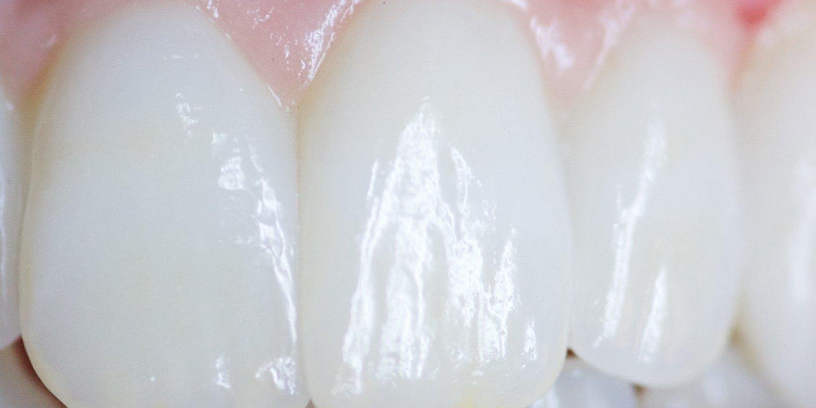 Keramisk tandbro med 4 tænder. Erstatter ægte ødelagte tænder. Fremstillet i zirkon. Designet af tandtekniker