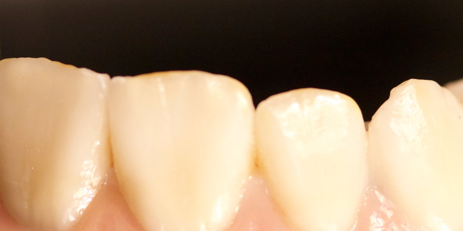 Zirkon er det mest efterspurgte materiale til design af naturtro keramiske tandbroer af bedste kvalitet