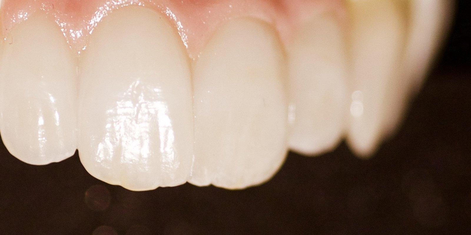 Helkeramisk tandbro i bedste kvalitet, der fungerer fuldstændigt i samspil med de ægte tænder i munden