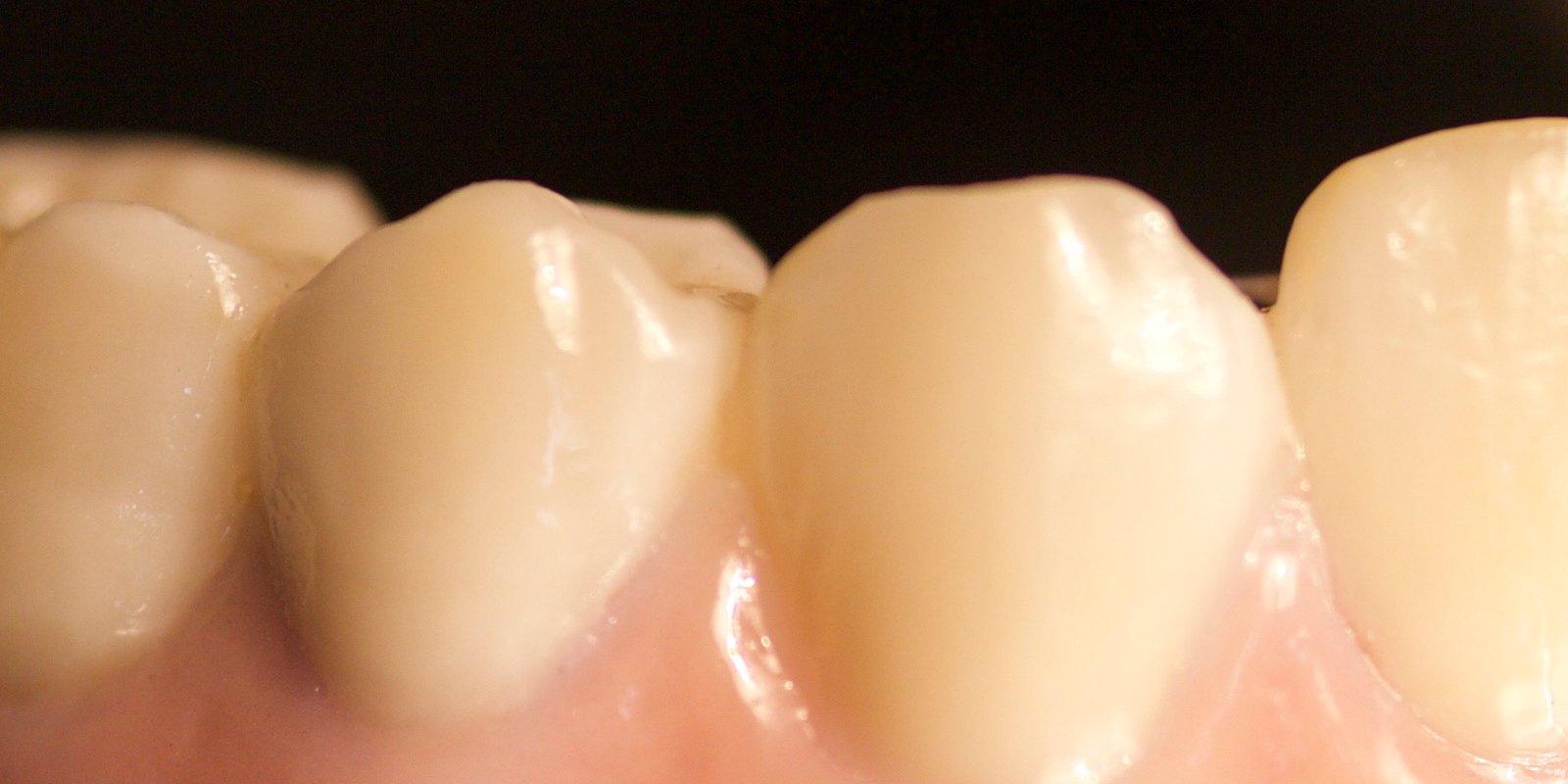 Keramiske tandbroer, der skal være naturtro og ligne ægte tænder, bør designes og fremstilles af en kompetent tandtekniker