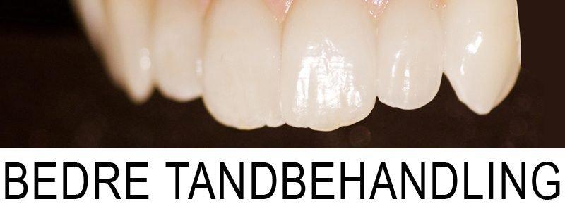 Bedre tandbehandling