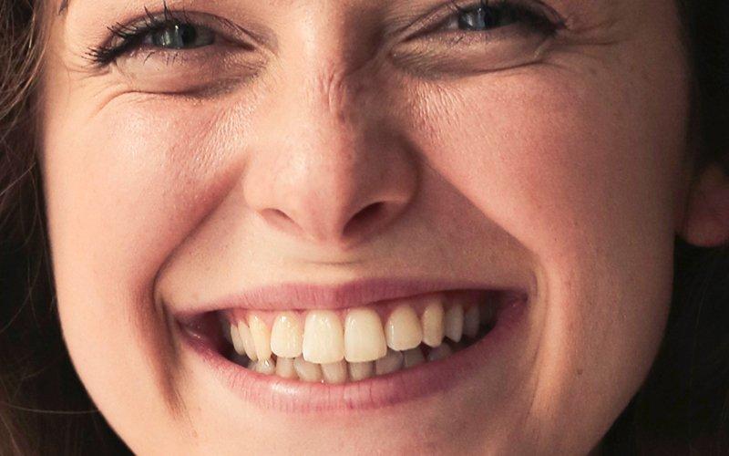 Naturlige tænder giver dig et flot smil