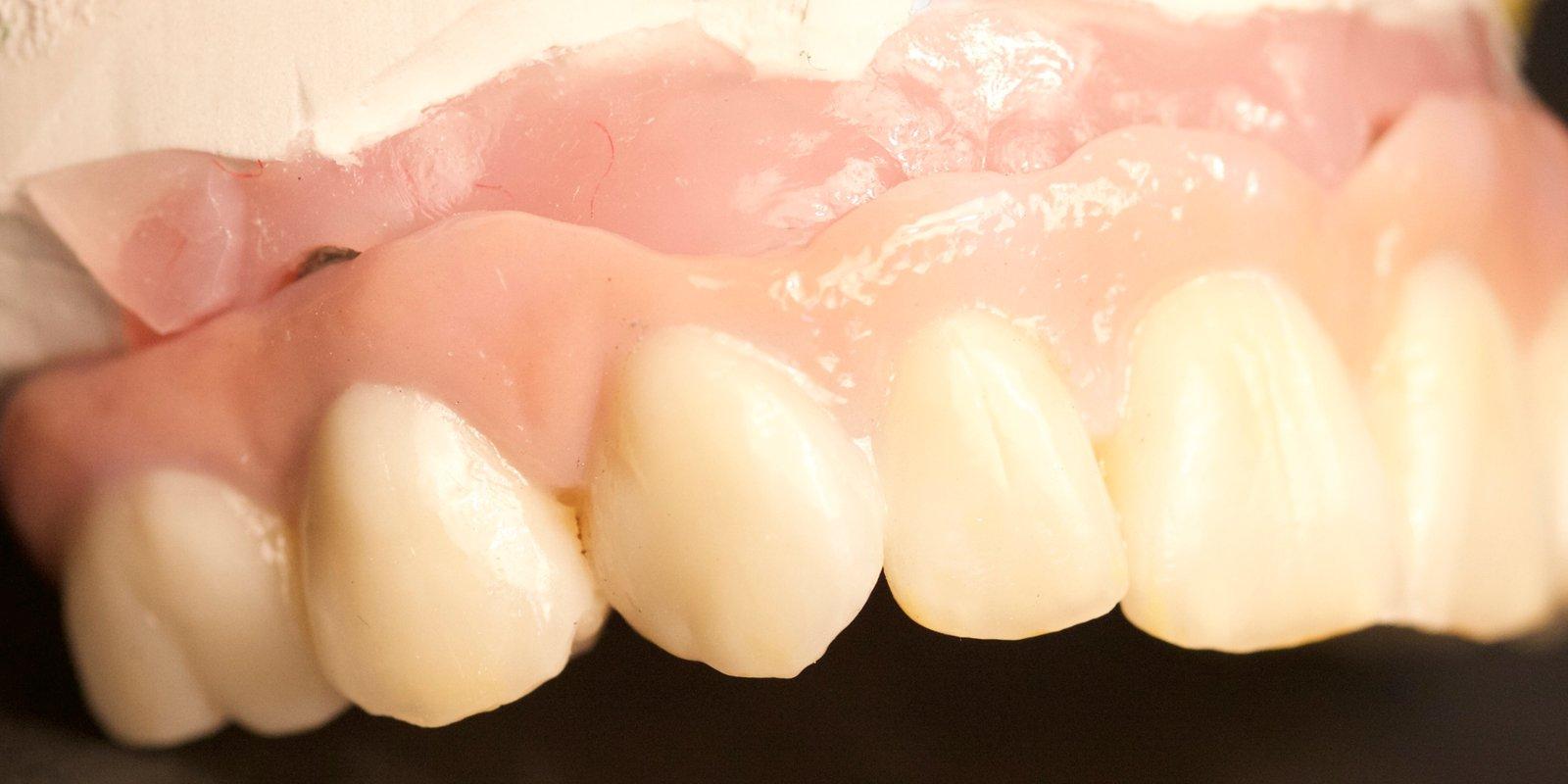 Opbygning af en naturtro tandbro. Det betaler sig at købe den bedste kvalitet inden for kunstige tænder