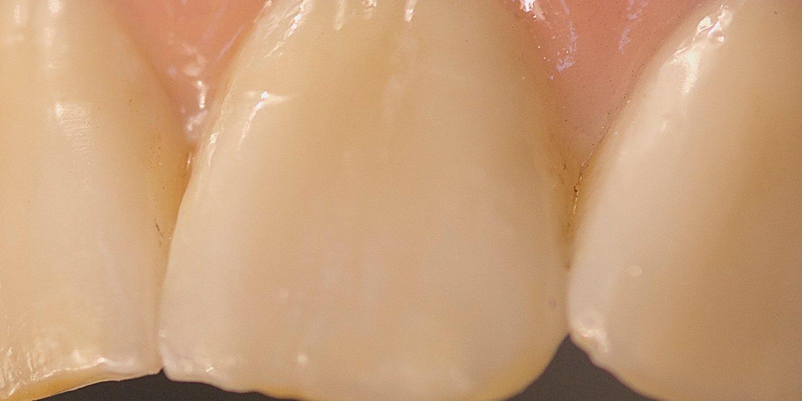Tandkrone designet og fremstillet af dansk tandtekniker