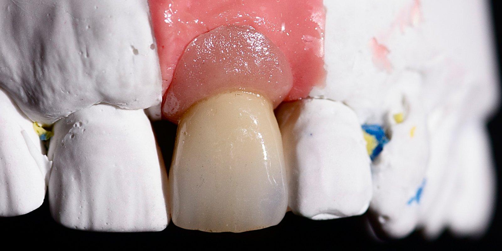 Tandkrone der skal sidde fast på en implantatrod