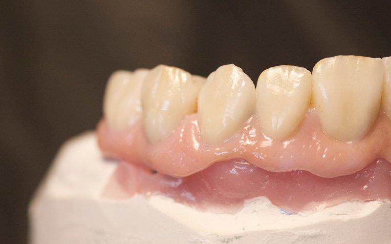 Dansk tandbro i allerhøjeste kvalitet med naturtro tænder