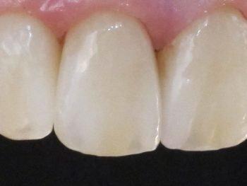 Kunstige tænder af høj kvalitet og designet af danske kompetente tandteknikere giver mest værdi for pengene