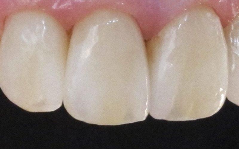 kunstige tænder pris