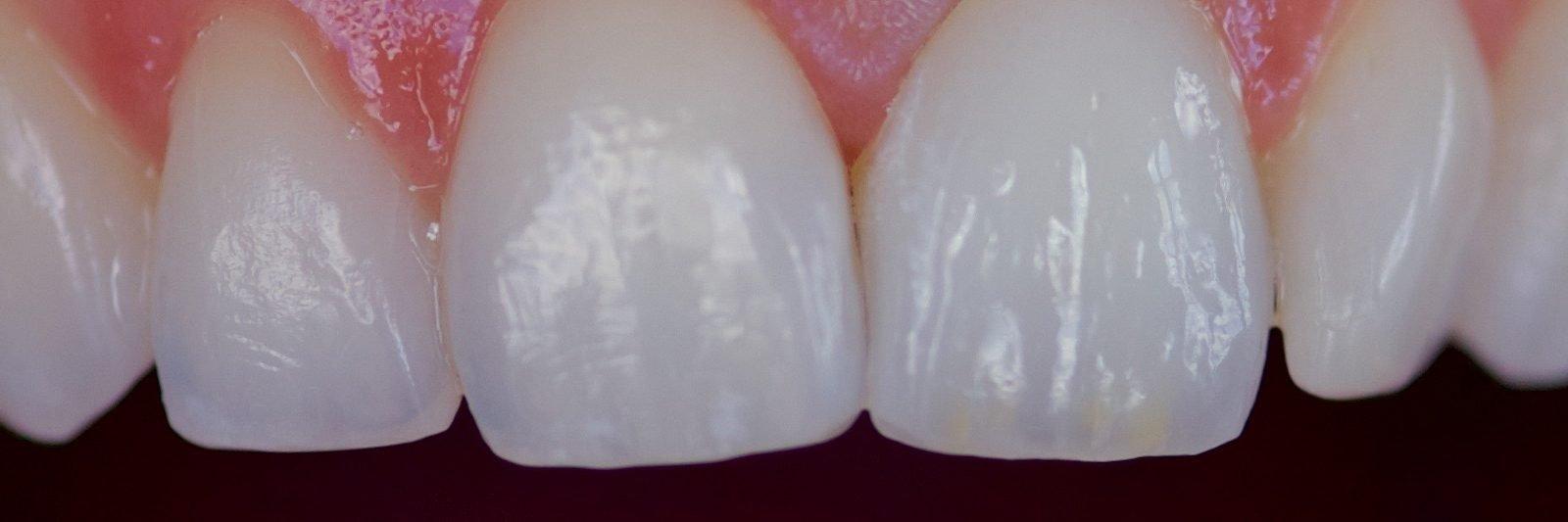 Køb nye kunstige tænder af høj kvalitet. Det gør de nye tænder billige på langt sigt