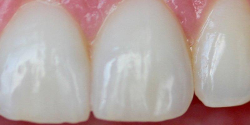 Tandkroner af høj kvalitet giver flotte og naturtro tænder