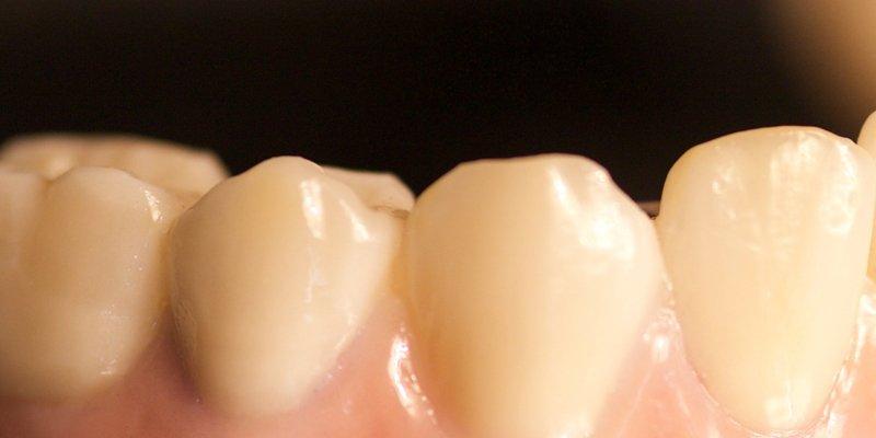 Tandkroner af høj kvalitet vil give dig mest for pengene